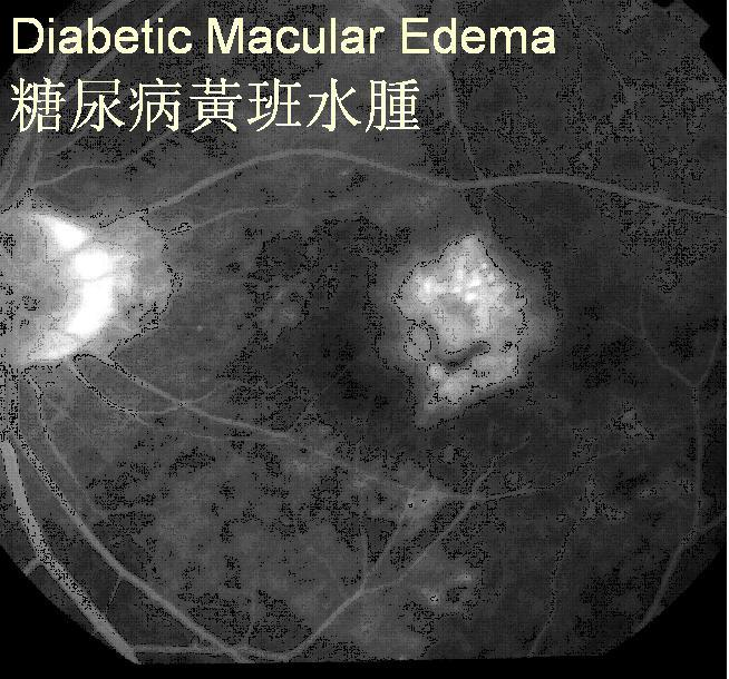 new treatment brings vision back to patients with diabetic