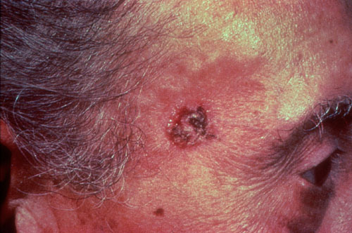 Sebaceous Hyperplasia in Adults: Condition, Treatments ...