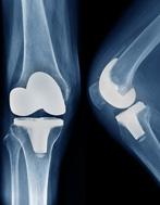 老龄性骨骼系统退化及再生策略